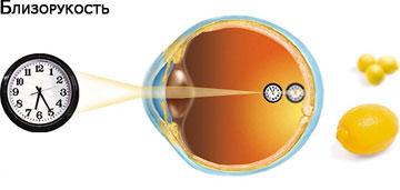 Болезнь глаз вызванная повышением внутриглазного давления