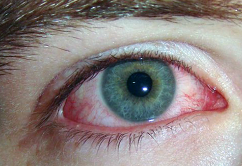 Покраснел белок глаза