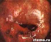 Эндометриоз влагалищной части шейки матки