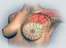 При мастопатии молочная железа поражается множеством образований