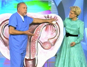 Техника операции при трубной беременности