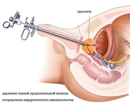 Онкология предстательной желез