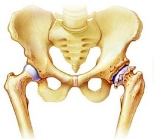 Боль в тазобедренном суставе | Причины | Как снять боль в ...
