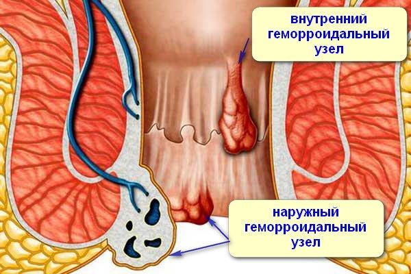 Вред анального секса - ovrede.ru