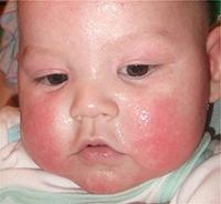 Чем кормить ребенка до года при атопическом дерматите у