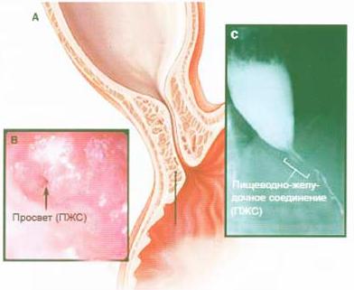 рефлюксной гастроэзофагеальной Современное лечение болезни