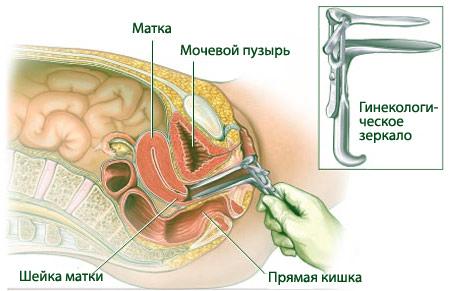Все прелести гинекологического осмотра фото 764-651