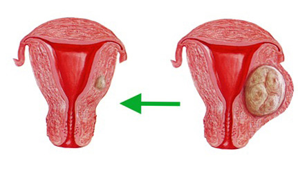 Миоммиометрэктомия и реконструктивное восстановление матки