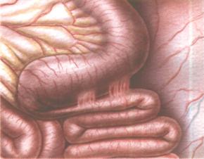 Непроходимость кишечника у пожилых людей операция