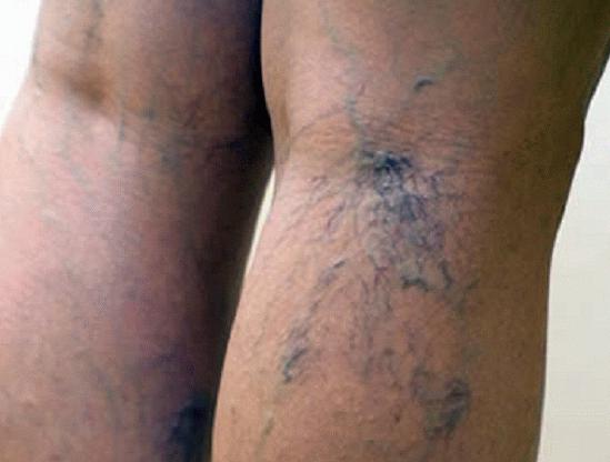 Эндовенозная лазерная облитерация вен осложнения