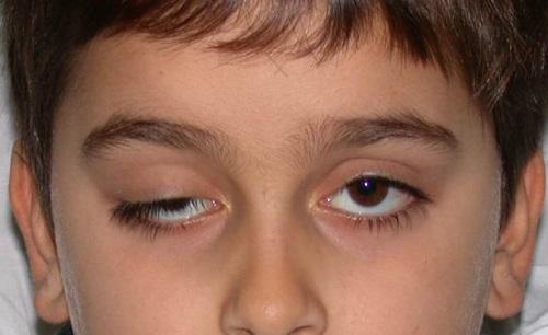 Что помогает убрать отек с глаз