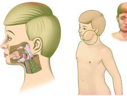 Признаки шейного и грудного остеохондроза у женщин