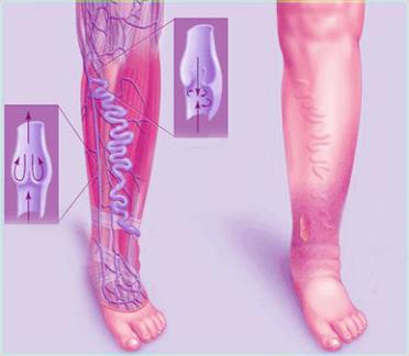 венозная недостаточность нижних конечностей завибрирует