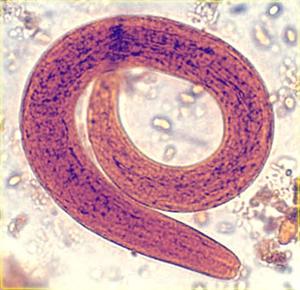 обнаружение паразитов в организме