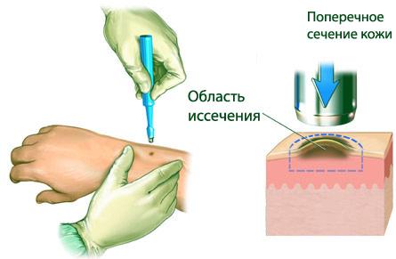 Результат биопсии кожи при псориазе