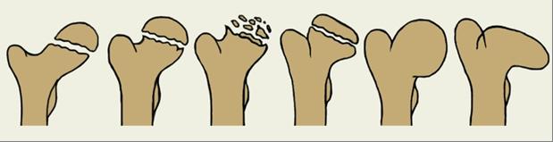 сустав: Остеоходнропатия головки бедренной кости (болезнь Легга ...