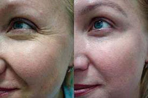 Атрофия кожи лица: признаки, лечение, фото
