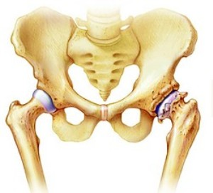 Чем снять суставную боль в тазобедренном суставе народное средство для очистки суставов