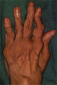 Воспаленному суставу при ревматоидном артрите дают отдых если скапливается жидкость в коленном суставе