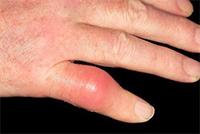 Подагра поражает суставы пальцев рук и ног, кисти, локти, колени, ступни