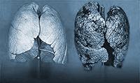 Одна из самых распространенных форм рака – рак легких