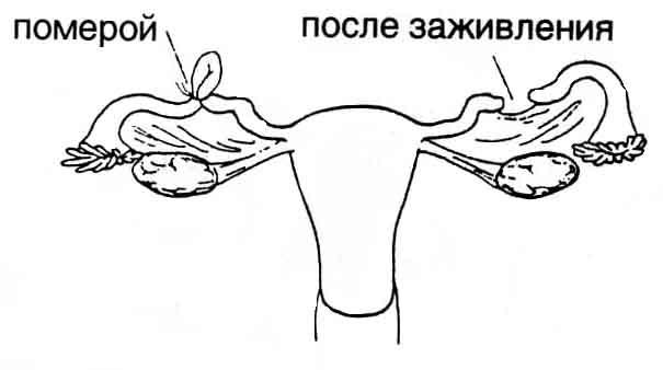 Схема ДХС по методу Помероя