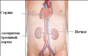 Квота на эндопротезирование аорты