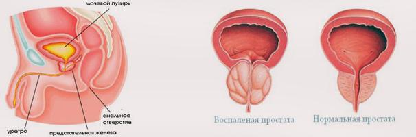 Излишнее напряжение во время секса хронический простатит