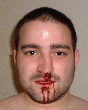 Как выровнять сломанный нос