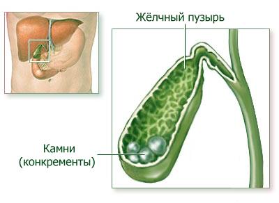 Лечение желчно-каменной болезни