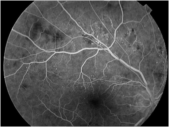 Флуоресцентная ангиография в офтальмологии судебная медицина в